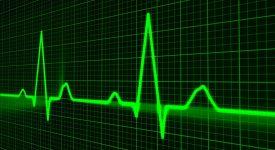 За нормальным функционированием сердца проследит созданная американцами система мониторинга
